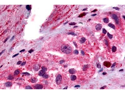 Anti-PTGER4 / EP4 antibody