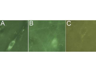 Anti-L1CAM antibody [UJ127]