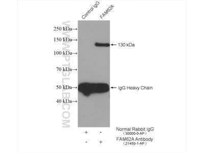 FAM62A antibody