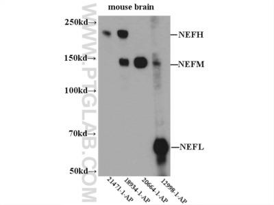 NF-H antibody