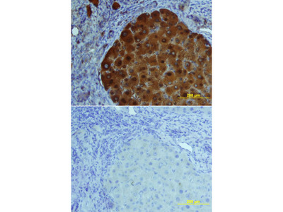 FABP1 / L-FABP Antibody