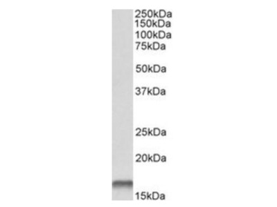 CSTB antibody