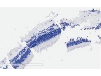 ARMS2 antibody