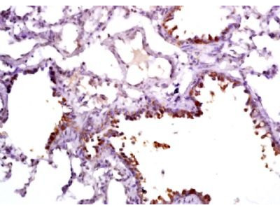 Clara cell protein 16 antibody