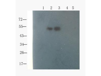 Collagen X antibody
