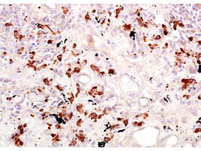 CD15 antibody