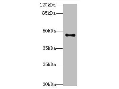 AADACL2 antibody