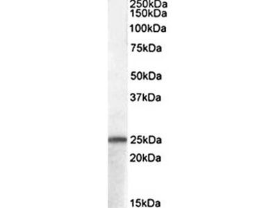 ADCYAP1 antibody