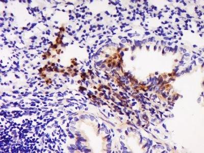 CCL22 antibody