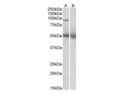 USP6 antibody