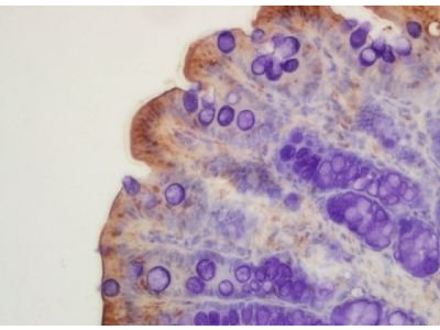 CFTR antibody