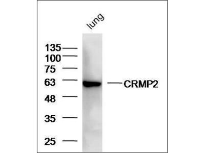 CRMP2 antibody
