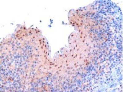 RANBP9 antibody