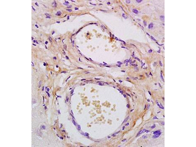 CXCL7 antibody