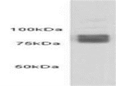 5-OxoETE peptide