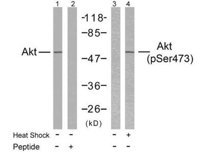 AKT (phospho-Ser473) antibody