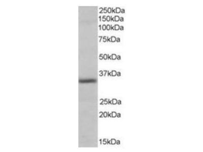 PIR antibody