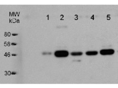 Anti- GDP-L-Galactose Phosphorylase