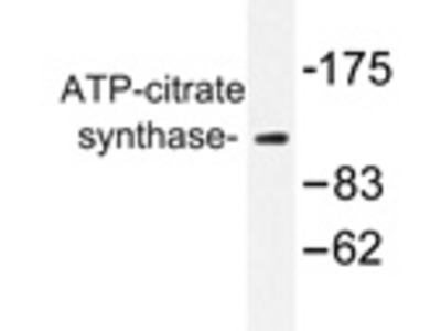 anti ATP-citrate synthase
