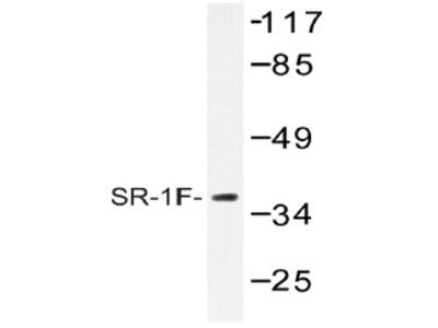 anti Serotonin receptor 1F (HTR1F)