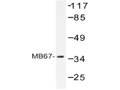 Constitutive androstane receptor (NR1I3) rabbit polyclonal antibody, Aff - Purified