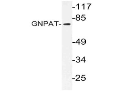 anti GNPAT / DAPAT
