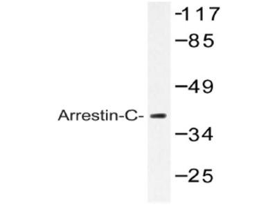 anti Arrestin C / ARR3