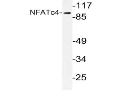 anti NFATc4 / NFAT3