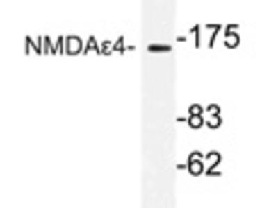 anti NMDAR2D