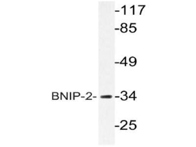 anti BNIP2