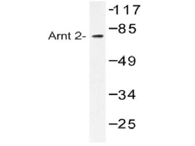anti ARNT2