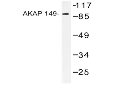 AKAP1 rabbit polyclonal antibody, Aff - Purified