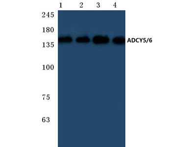 anti Adenylate cyclase type 5 (+ADCY6)