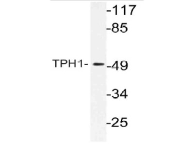 anti Tryptophan 5-hydroxylase 1 (TPH1)