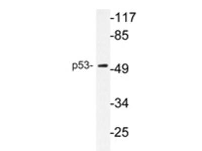 anti TP53 / p53
