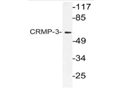 anti DPYSL4 / CRMP3