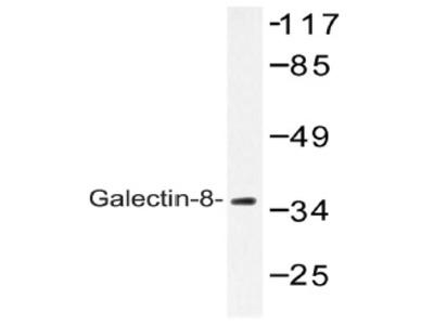 anti Galectin-8