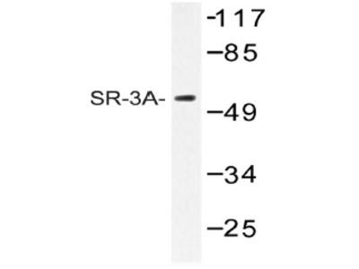 anti Serotonin receptor 3A (HTR3A)