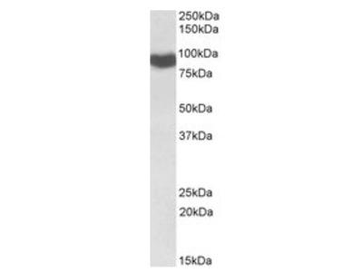 anti Cytochrome P450 Reductase