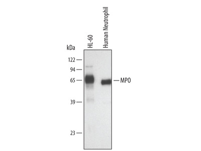 Myeloperoxidase / MPO Antibody