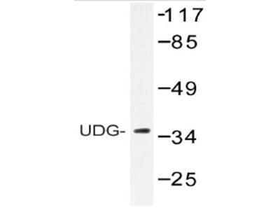 anti Uracil-DNA glycosylase 2 / Cyclin-O