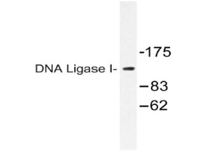 anti DNA ligase 1