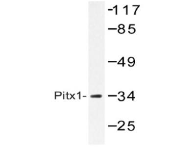 anti PITX1