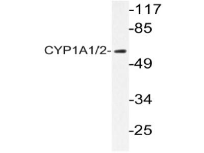 anti CYP1A1 (+CYP1A2)