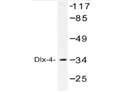 anti DLX4 / BP1