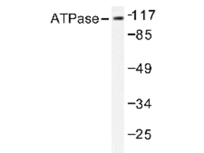 anti ATP1A1