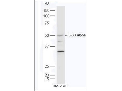 IL6 alpha Receptor antibody