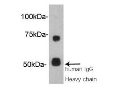 Vitamin K-dependent protein S antibody