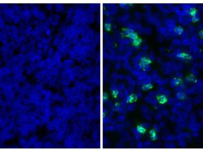 anti-Ly6g antibody
