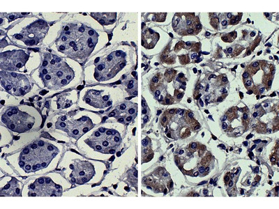 anti-MMP3 (MMP10) antibody